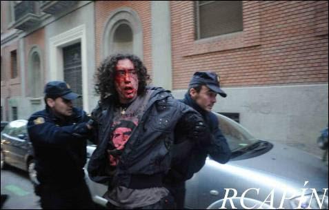 Un manifestante herido es detenido por la Policía durante el escrache a la sede del PP en Madrid contra la reforma de la ley del aborto, el pasado 17 de mayo.
