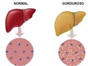 Como Eliminar a Gordura no Fígado Com Chá Natural