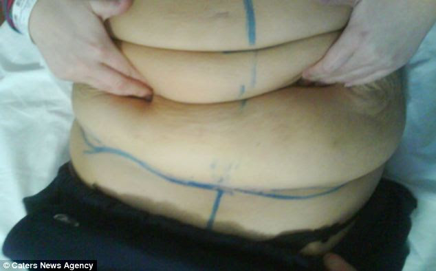 Mrs Barrett says she was warned of the risks of the skin removal surgery but that she trusted the surgeon. Image shows her stomach being marked up before the operation