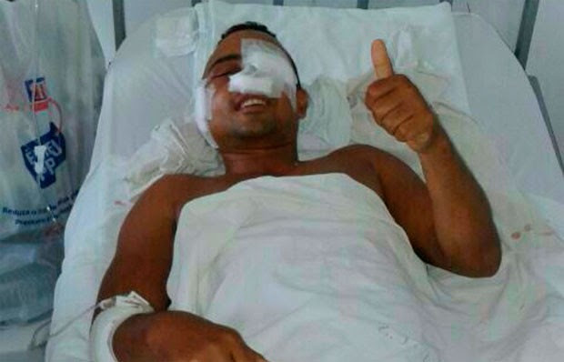 Soldado Anderson Ferreira perdeu visão do olho esquerdo (Foto: Divulgação/Polícia Militar do RN)