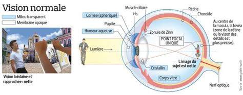 lecon du jour cest quoi la myopie neptune optique