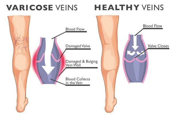 varicose veins hereditary