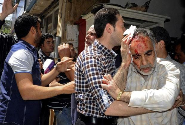 Feridos são retirados de local de explosão em Damasco (Foto: Sana/AP)