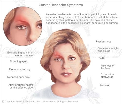 Headache Behind Eyes Nausea - Cluster Headaches