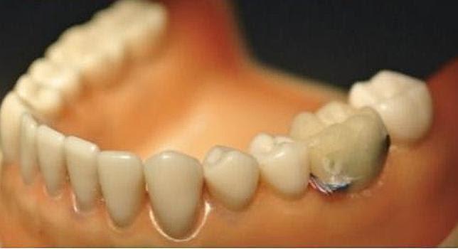 Un sensor dental para alertar si comes o fumas demasiado