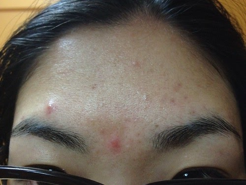 Mint.Music: [Mint.Music.Lifestyle] Tackle ADULT ACNE With ...