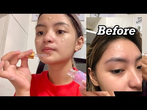 PIMPLES? MY SKIN CARE ROUTINE!