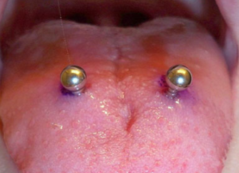 Infected Tongue Piercing Signs Symptoms Treatment Web