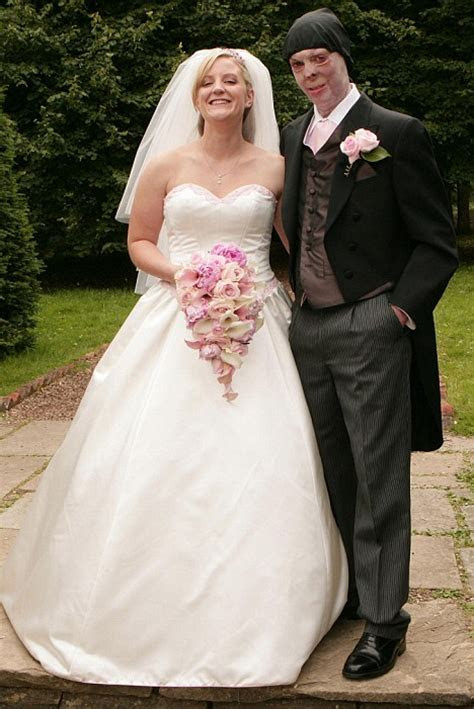 Most beautiful wedding of the year: Scarred soldier