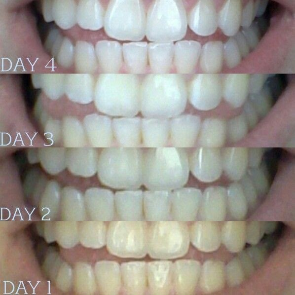 Teeth Nails: Coconut Oil Pulling. Take About A Tablespoon