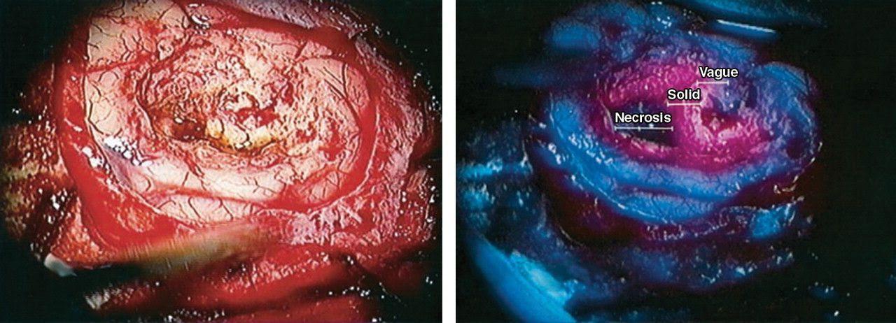 Posts Tagged Glioblastoma Neurosurgery Blog