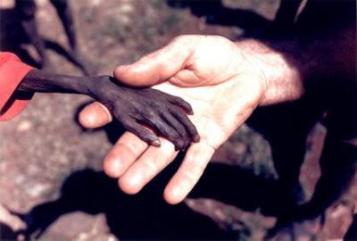 ソマリアの子供(左)& 国連スタッフ(右)