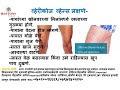 cure varicose veins