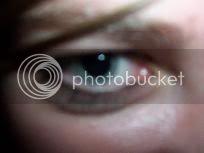 Not My Eyeball; Hi Lindsay!