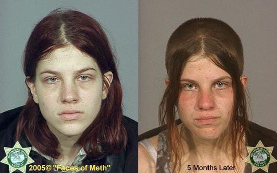 Άνθρωποι πριν και μετά την χρήση ναρκωτικών (17)