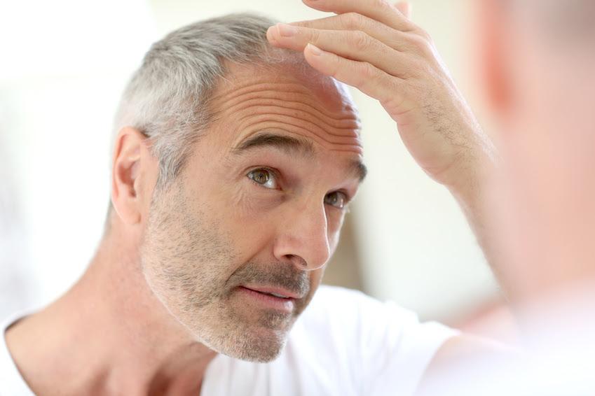 Erblich Bedingter Haarausfall Und Die Erfolgreiche Behandlung