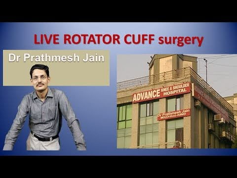 Live Basic Arthroscopic Rotator cuff repair Surgery by Dr Prathmesh