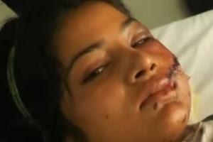 A paquistanesa Saba Maqsood, 18, levou um tiro no rosto e foi jogada em um canal por familiares