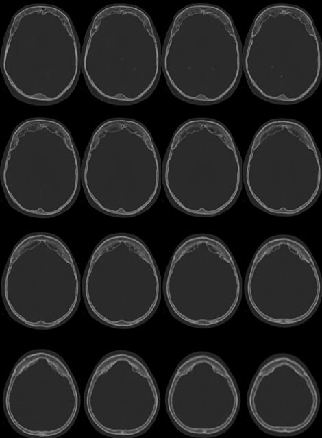 hiperostosis frontal interna