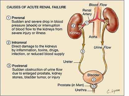acute-renal-failure