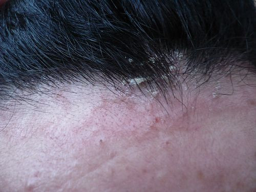 dermatite seborroica capelli rimedi - Come curare la dermatite seborroica Rimedio per la caduta dei capelli