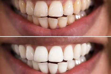 10 BEST TOOTH WHITENING TIPS FREE AT YOUR HOME   Trending news