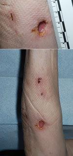 Thumbnail of Forearm lesion after incision and drainage in immunosuppressed woman with cutaneous Legionella longbeachae infection, United Kingdom.