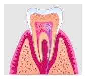 Osseo endodontist Osseo
