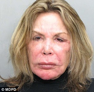 Elsa Patton after cosmetic surgery (image hosted by dailymail.co.uk)