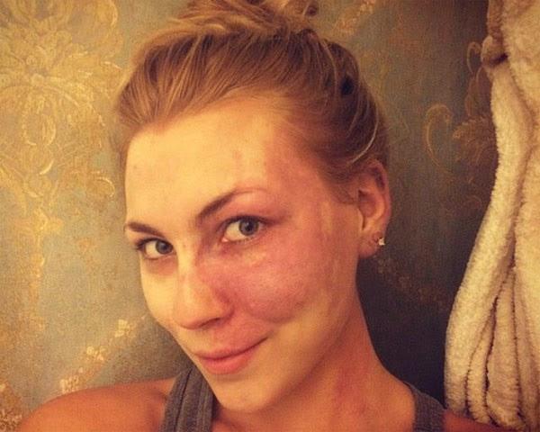 Paige mostra seu rosto sem maquiagem e sem filtro (Foto: Reprodução/Instagram)