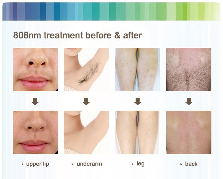 Laser Hair Removal Philippines Price