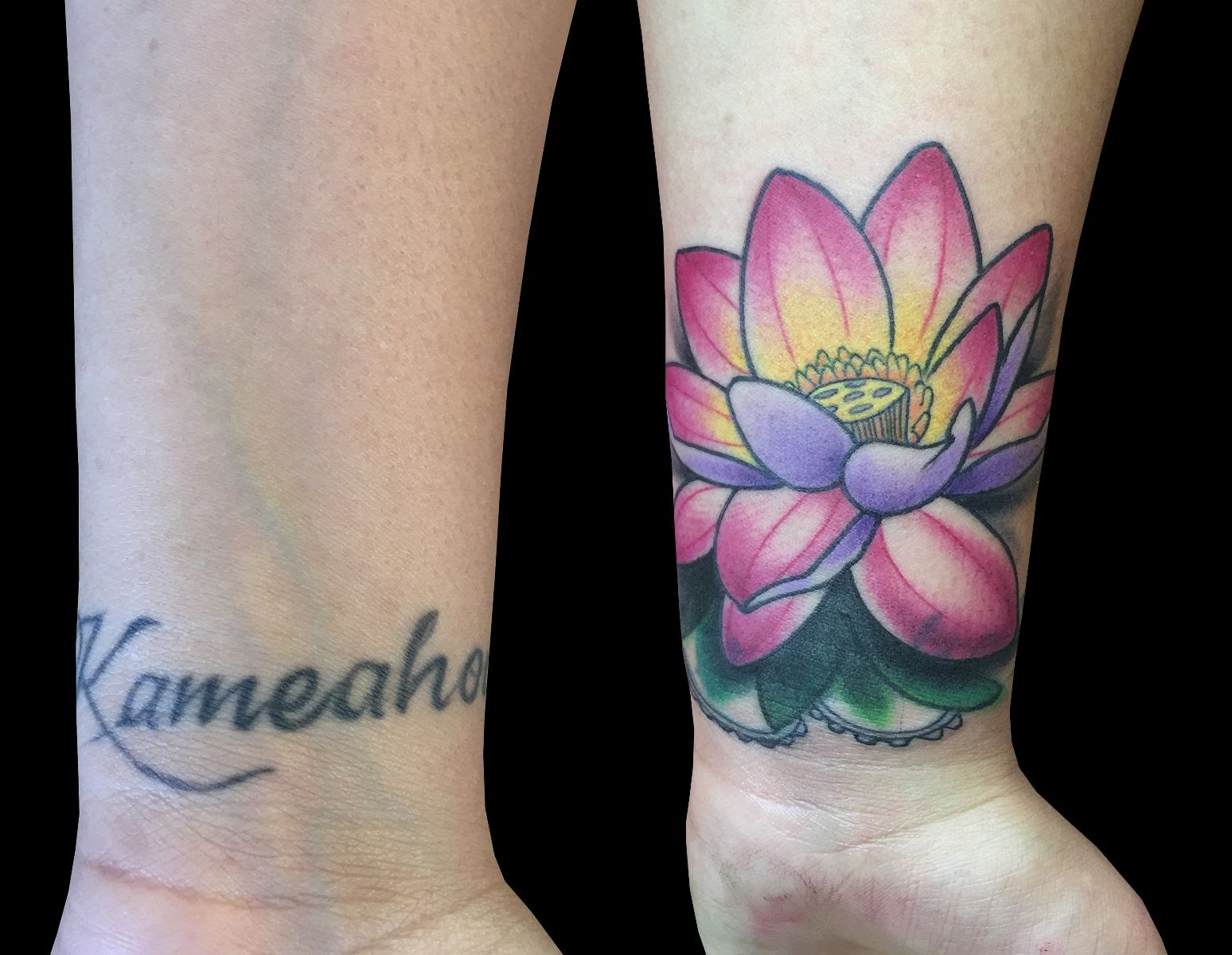 Lotus Cover Up By Monica Painter Sweet Trade Tattoo