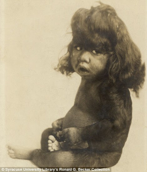 Captivating: A 26-month-old hairy baby was one of the attractions on show at the freak circuses around the mid-1800s in New York along with four-legged Myrtle Corbin, who had two sets of female genitalia