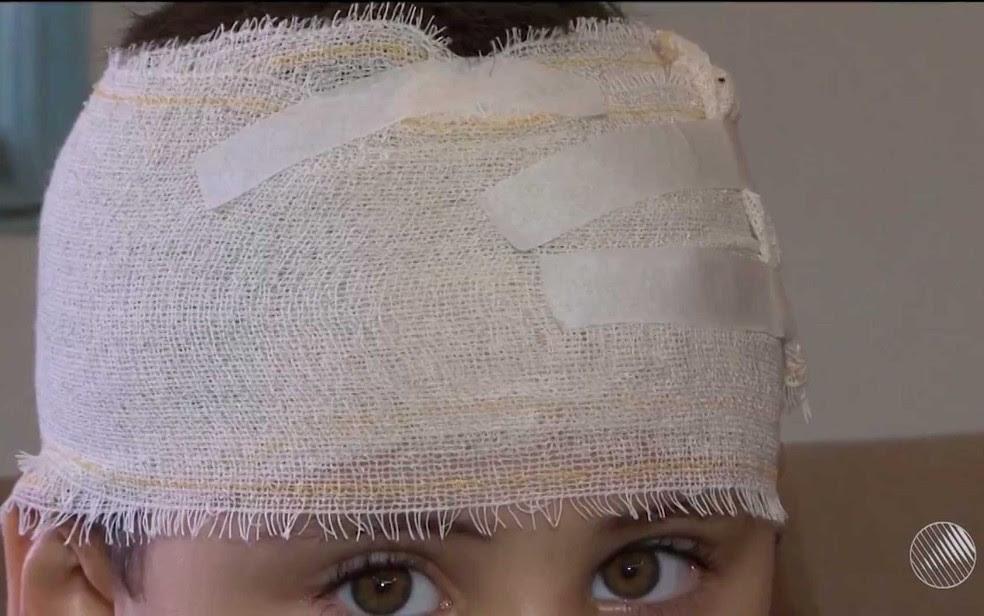 Israel teve ferimentos pelo corpo, inclusive na cabeça, na Bahia (Foto: Imagem/TV Sudoeste)