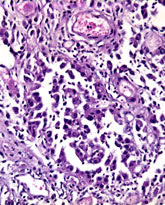 Histology of peritoneal cancer