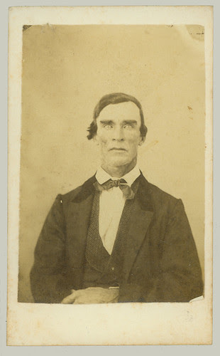 CDV man post mortem