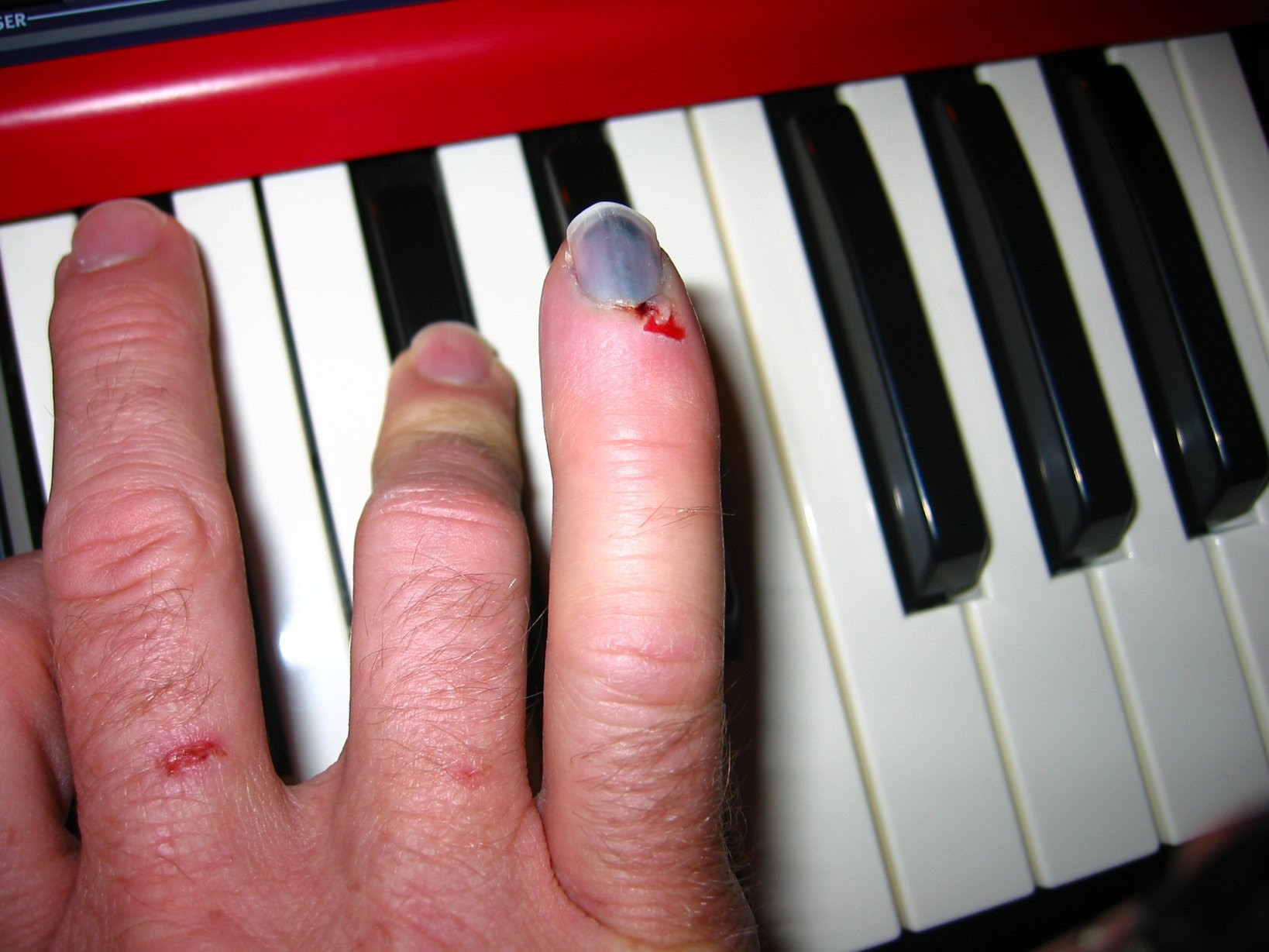 m1 smashed pinky on Nord electro 2 - soul amp