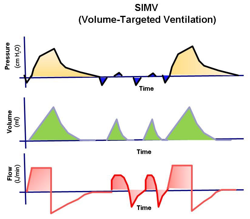 The pressure, volume, and flow to time waveforms ...