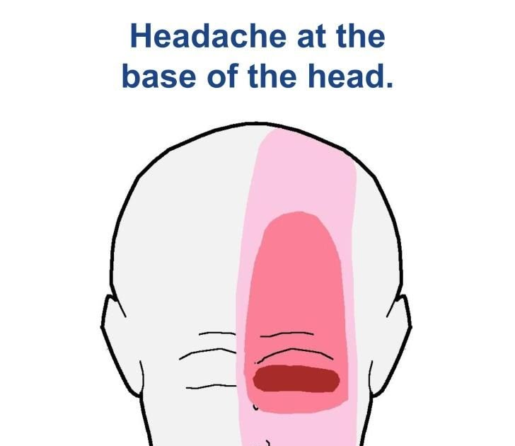 Headache Back Of Head And Neck