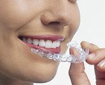 Aparelho dentário Invisalign