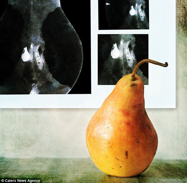 Baby pears: This fruit appears to be looking at neonatal scans of a pregnant pear