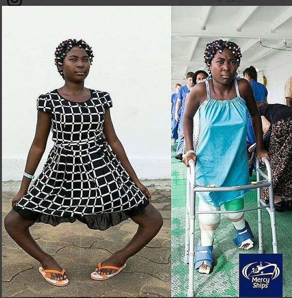 Girl With Severe Bow Legs Can't Wait To Dance After Undergoing Surgery (Photos)