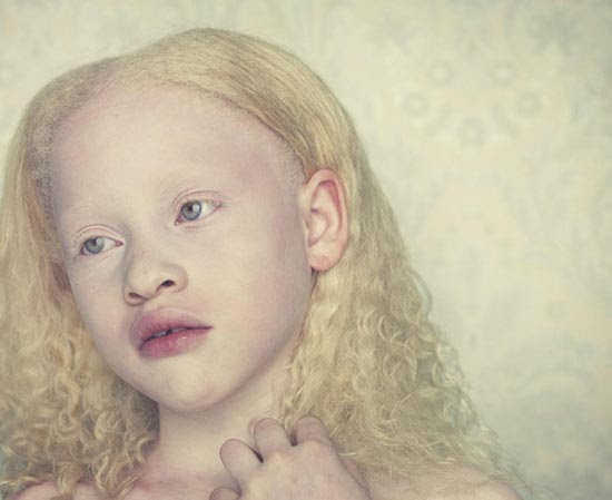 Albino (14)