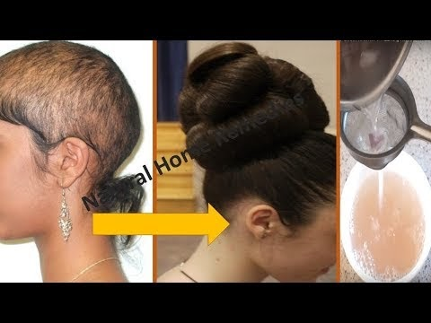 ⭐AWARDED BEST HAIR GROWTH REMEDY TO GROW HAIR IN 4 WEEKS