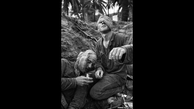 El médico de la División de la Primera Caballería Thomas Cole, con un ojo vendado, trata al sargento Harrison Pell. Fue tomada el 30 de enero de 1966 durante un intercambio de disparos en An Thi entre tropas estadounidenses y fuerzas combinadas del Viet Cong y Vietnam del Norte. Foto de Henri Huet/AP