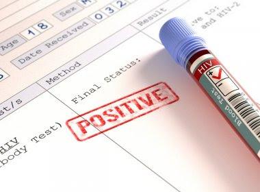 Ministério afirma que 260 mil brasileiros sabem de infecção por HIV, mas não se tratam