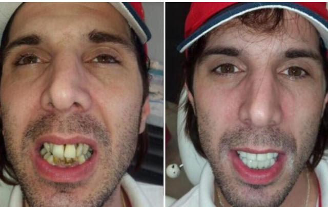 El gigoló se arregló los dientes y le quedaron una pinturita
