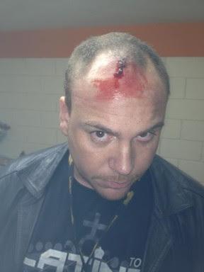 Russo, produtor do cantor Latino, com ferimento na cabeça após agressão antes de shows em Nazareno, Minas Gerais (Foto: Twitter/ Reprodução)