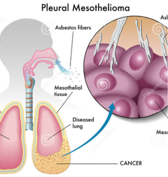 Factors affecting treatment options for Lung Mesothelioma  MesotheliomaCancer