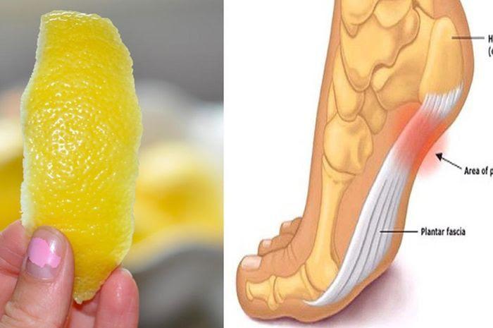 Lemon untuk nyeri sendi